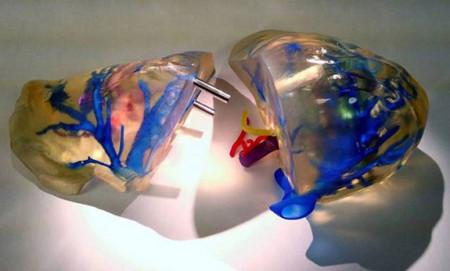3d-liver-split-140307